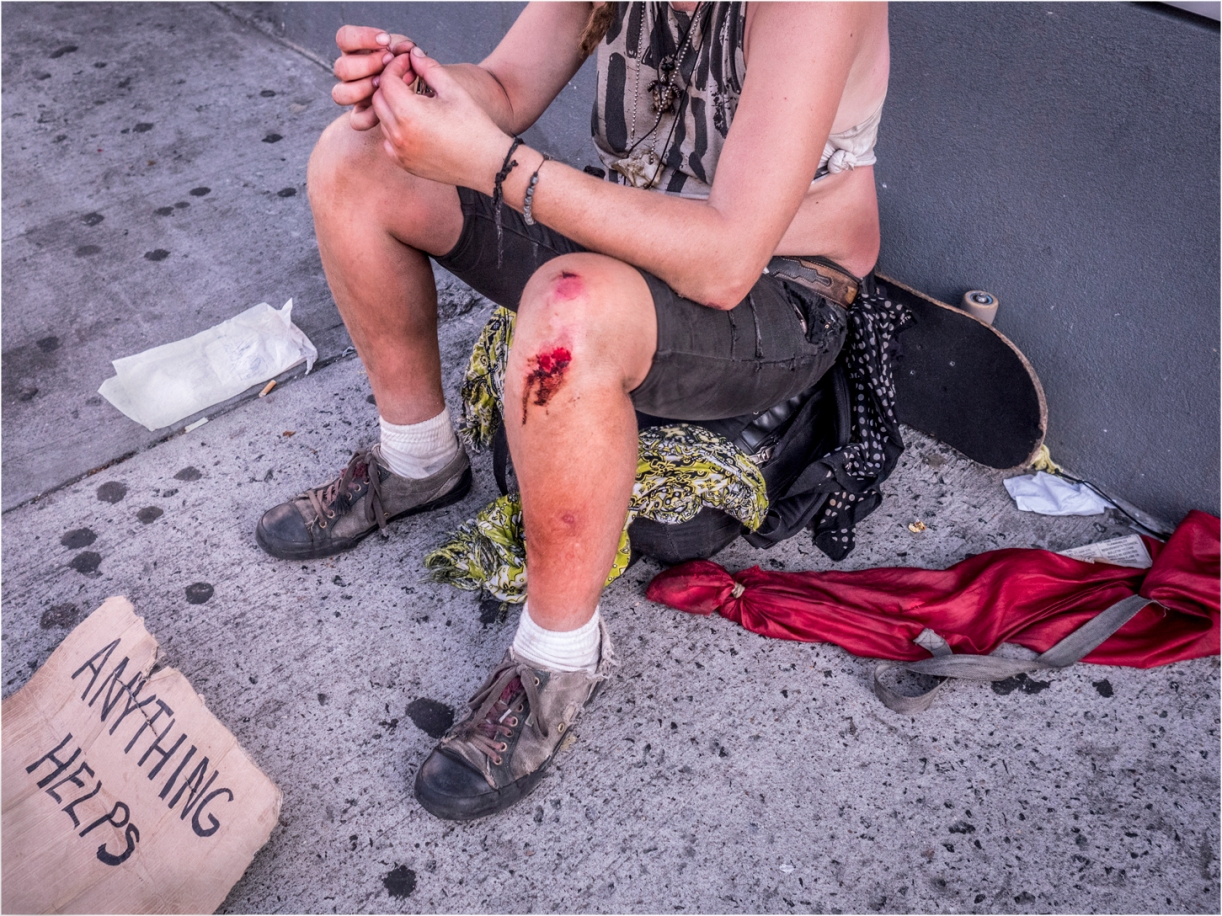 coney-homeless-anything-helpsblood-knee-copy